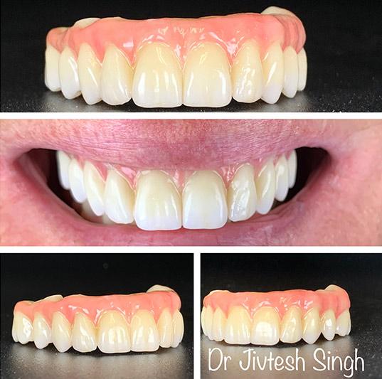 Dental Implants in NY