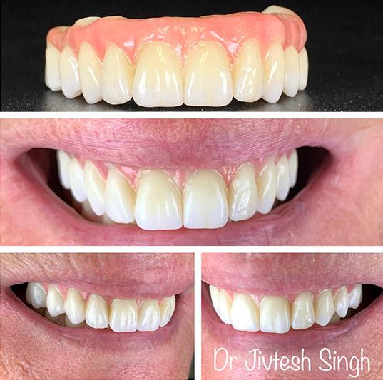 Implant Dental in 11967