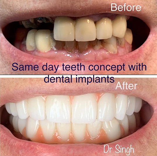 Top Rated Implant Dentist