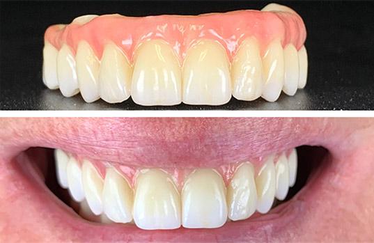 A & B Dental Special Offer