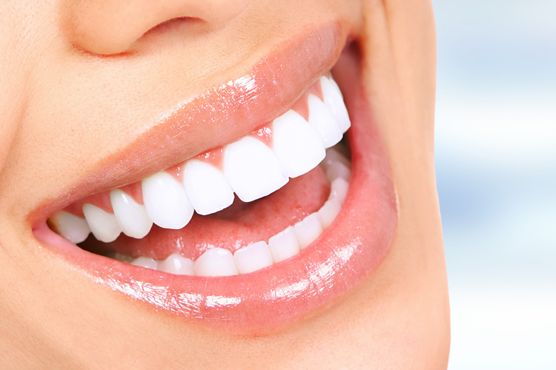 Teeth in a Day with Implants in Shirley