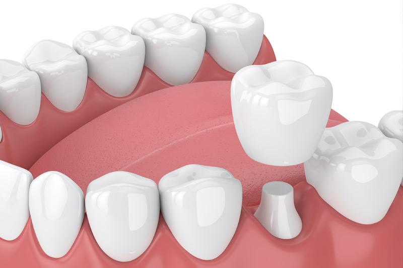 Dental Crowns in Shirley