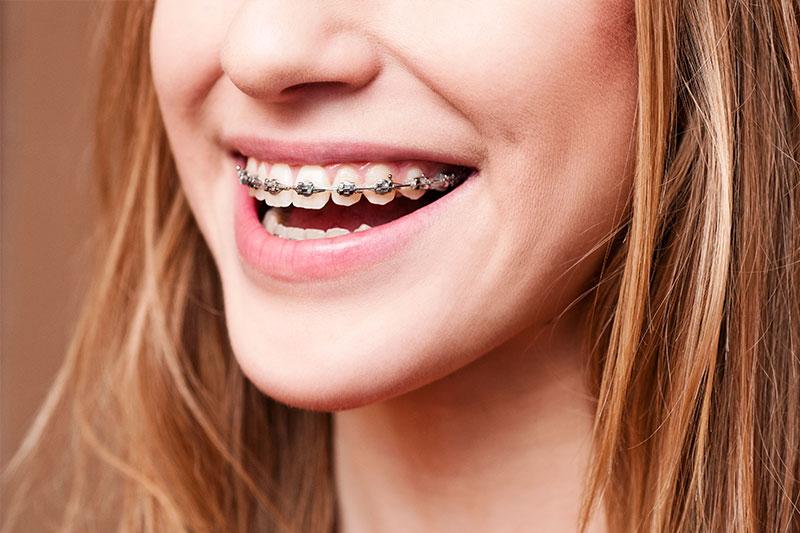 Orthodontics in Shirley