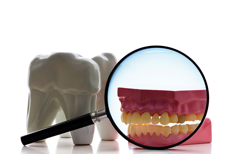 Root Canal in Shirley