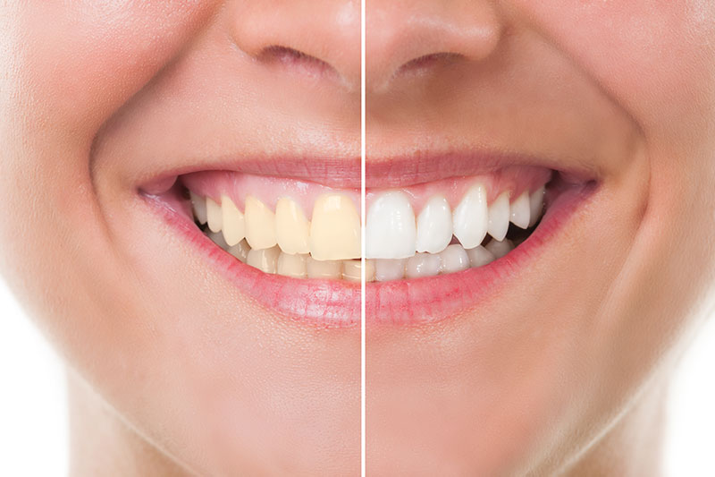 Teeth Whitening in Shirley