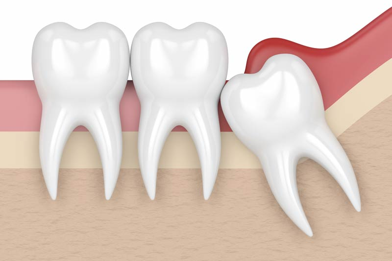 Wisdom Tooth Removal in Shirley